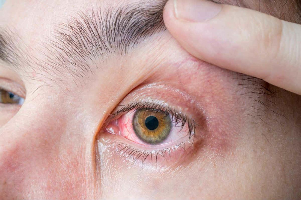 ízületi fájdalom vörös szem)