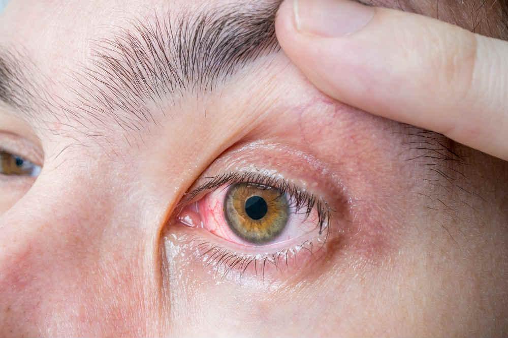 szem-allergia