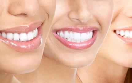 fogak1