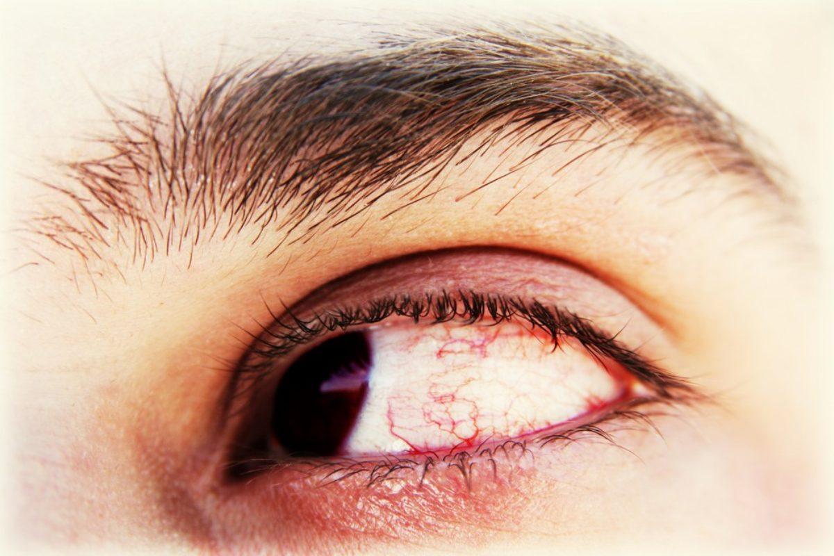 elvesztette a látást a szem előtt