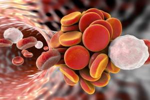 trombozis
