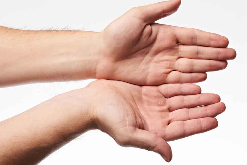 fájdalom a kéz könyökéjén