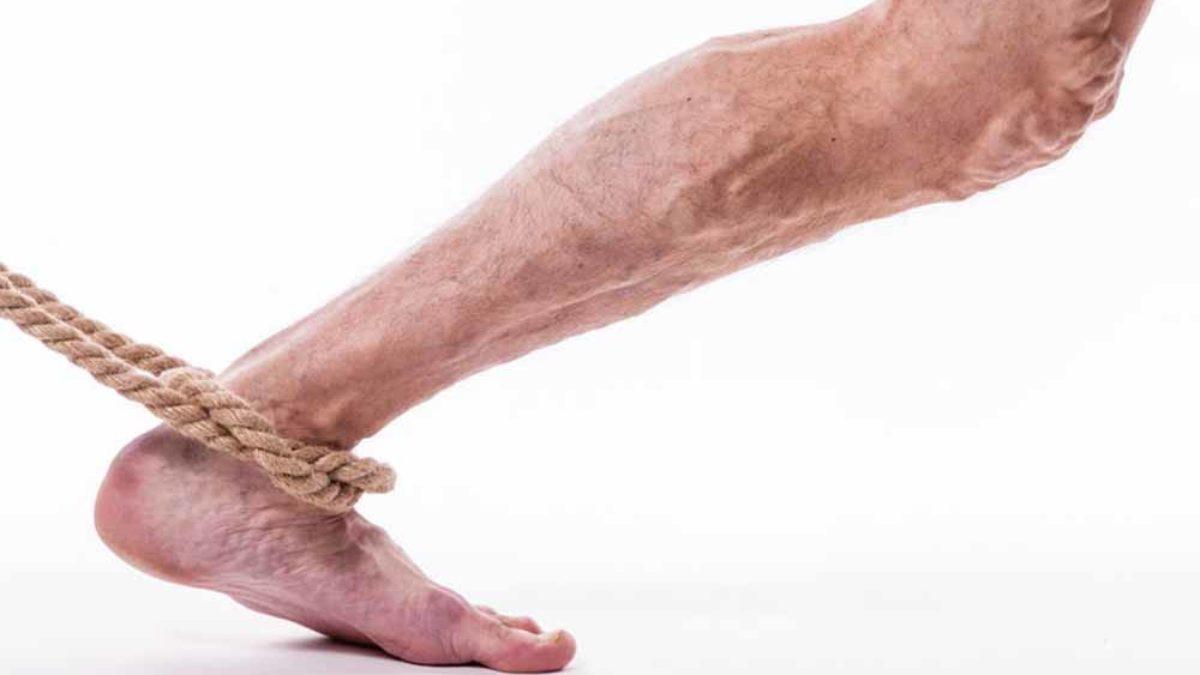 a lábak visszeres megelőzése