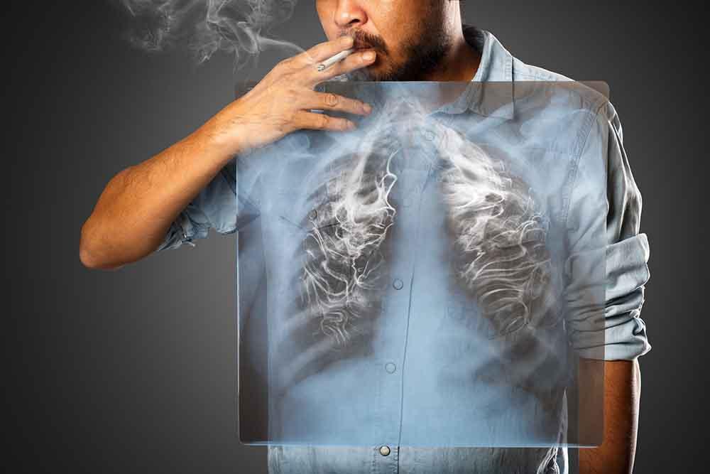 A füstszűrő és a tüdőrák