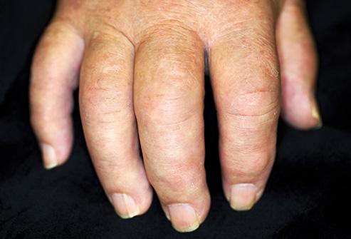 az állán vörös foltok pikkelyesek és viszketőek mi a legjobb módszer a pikkelysömör kezelésére