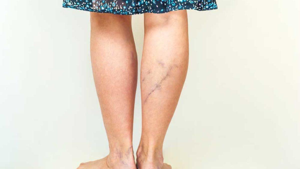 a lábakon lévő erek kiszabadultak; a visszér fáj