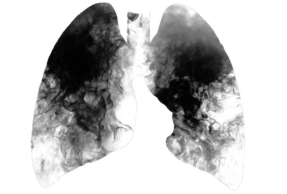 Coronavirus أعلى للأشخاص الذين يعانون COPD-tüdő.