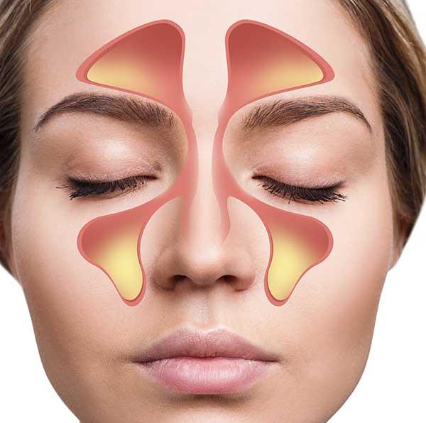 Arcüreggyulladás tünetei