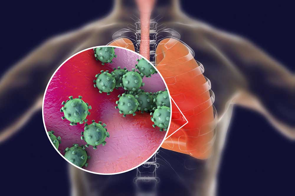 koronavírus-tüdő.jpg