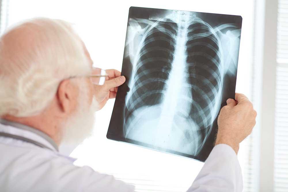 röntgensugárzás alakul ki)