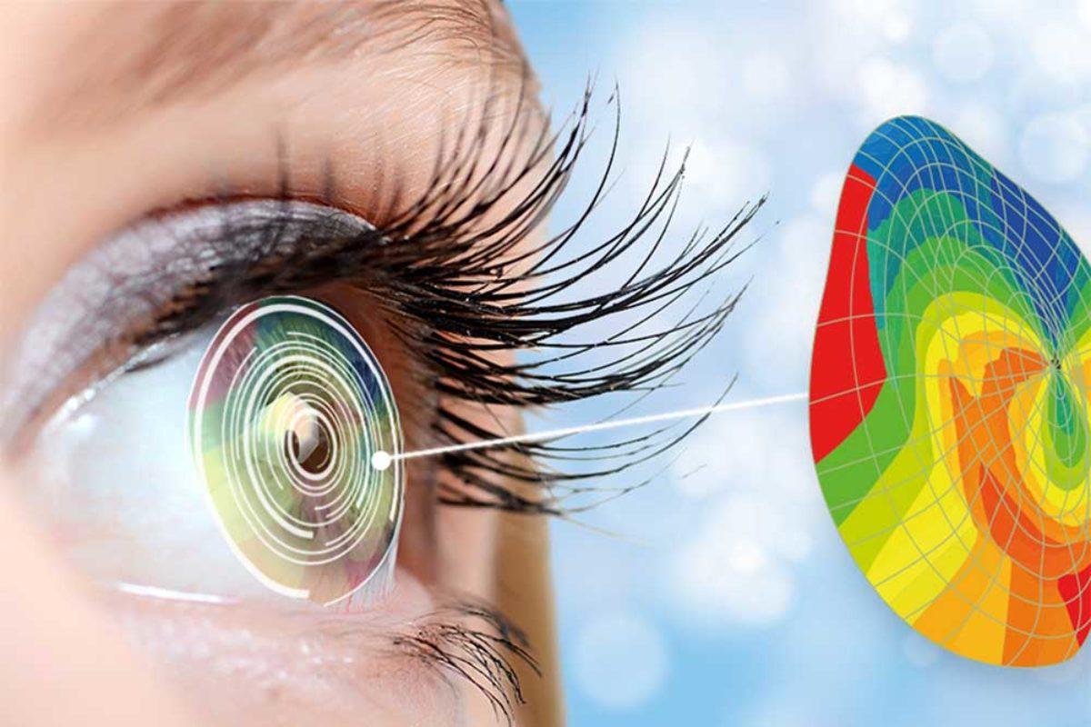 glaukóma szemlátás
