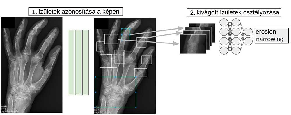 röntgen látás tanulni)